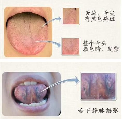 看舌苔即可了解你的健康状况